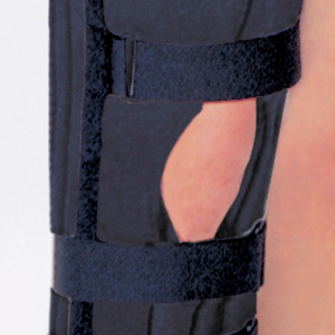 Knee Immobilizer by RCAI Photo 4